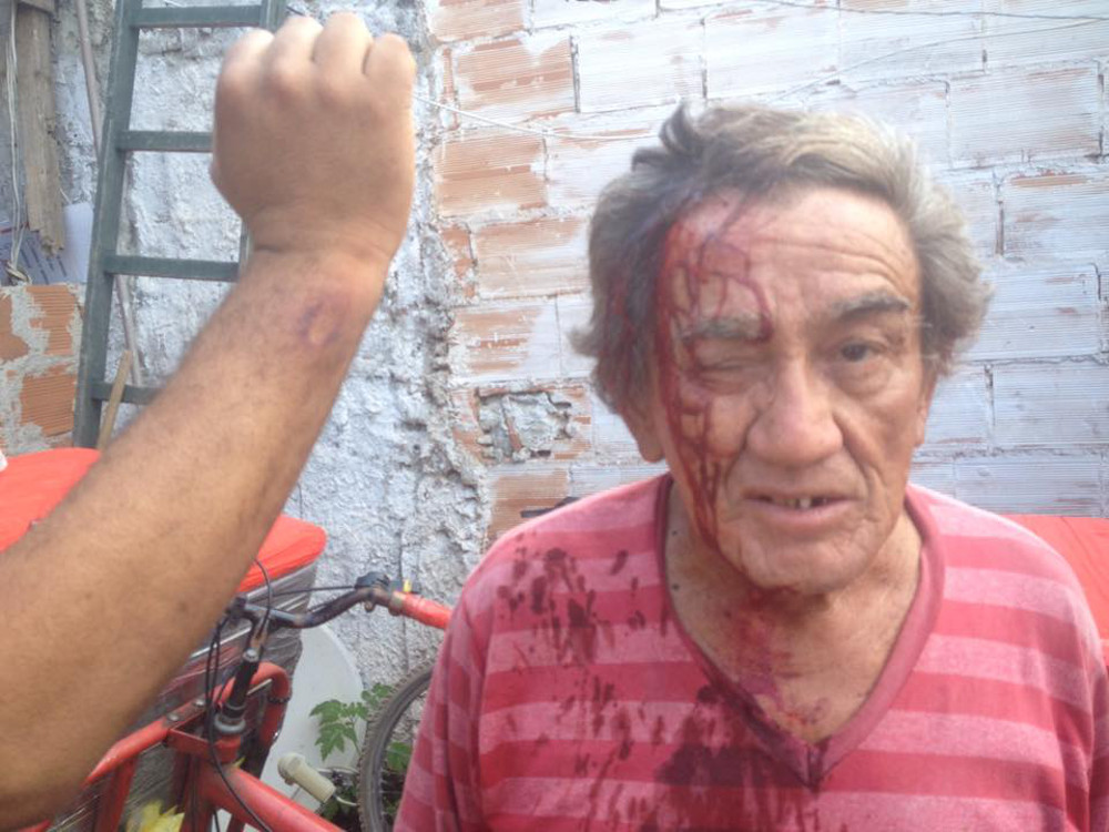 Vila Autódromo resident injured in clashes with police.