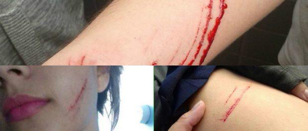 Mendes-injuries